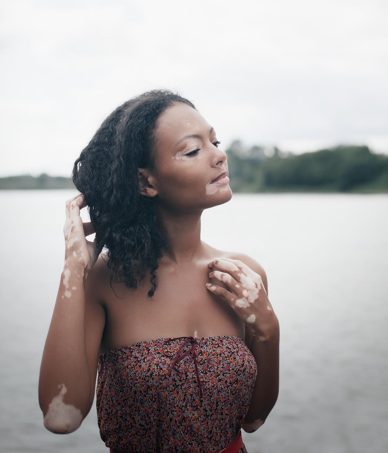 22 Best Natural Home Remedies for Vitiligo treatment