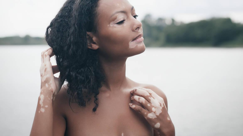 Vitiligine: un approccio nutrizionale per prevenzione e terapia.